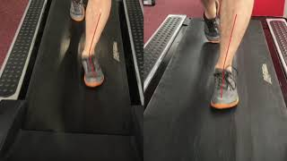 Плоскостопие упражнения. Исправление ходьбы