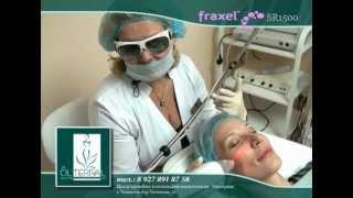 Fraxel Фраксель Молодость кожи Тольятти Смотреть видео(Сообщаем Вам, что найдена альтернатива пластической хирургии! Fraxel SR 1500 - это лазерная процедура, котора..., 2012-11-27T18:02:53.000Z)