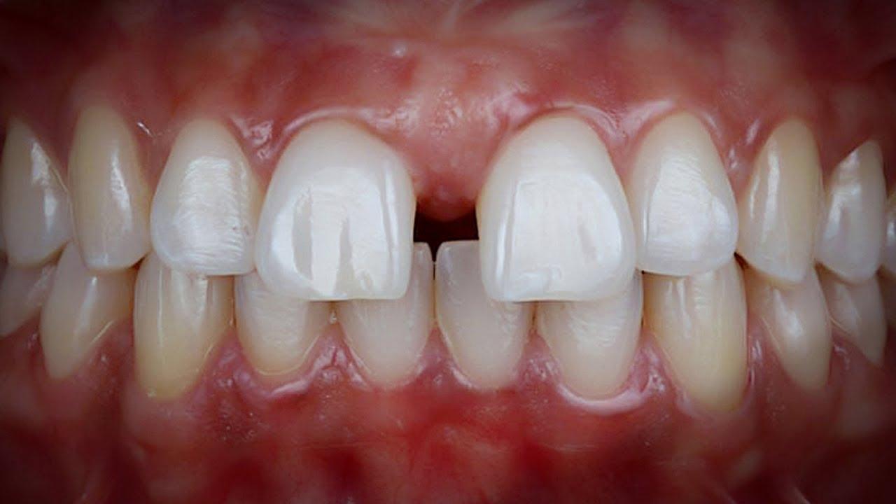 Niềng răng Invisalign trường hợp răng thưa | invisalign fix spacing teeth