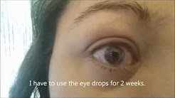 What happens if you sleep with contacts on?