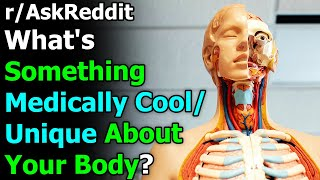 What's Something Medically Cool/ Unique About Your Body? r/AskReddit | Reddit Jar