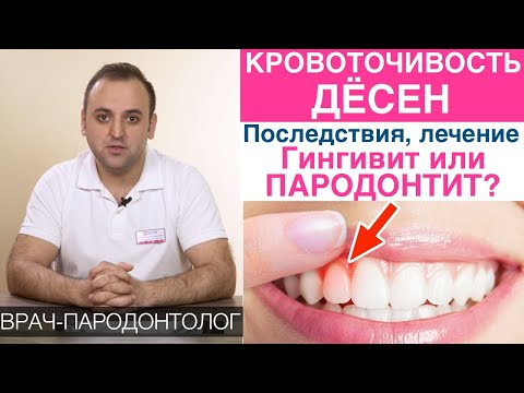Кровоточат десна при чистке зубов как лечить в домашних условиях