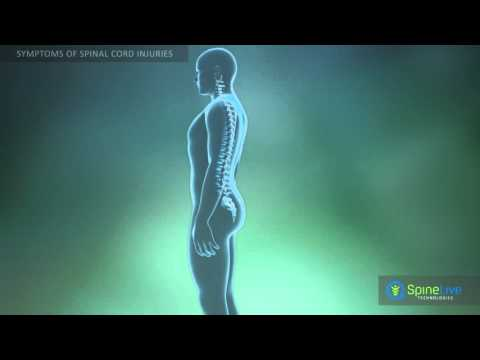 hqdefault - Is Sciatica A Spinal Cord Injury