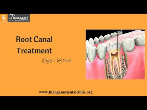 Root Canal Treatment In Chennai | Dental Treatments In India