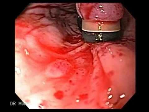 Como sanar la tromboflebitis superficial