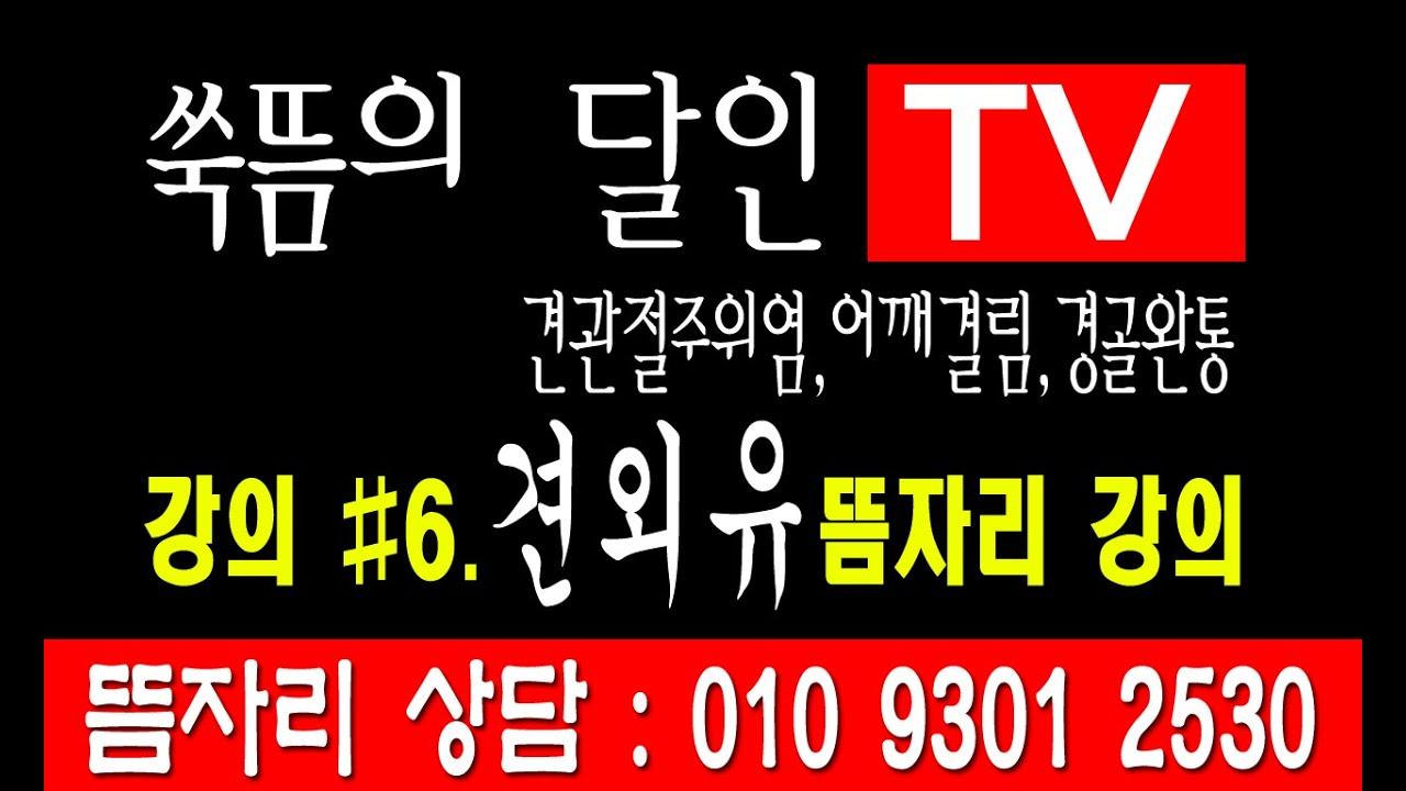 쑦뜸 자리 알아보기 #6. 견외유 뜸자리  ( 견관절주위염,어깨결림, 경골완통 특효뜸자리 ) 쑥뜸자리 해설