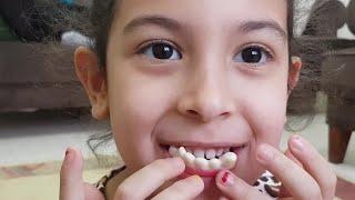 MİRA 'nın Dişlerine Ne Oldu Eğlence Tv