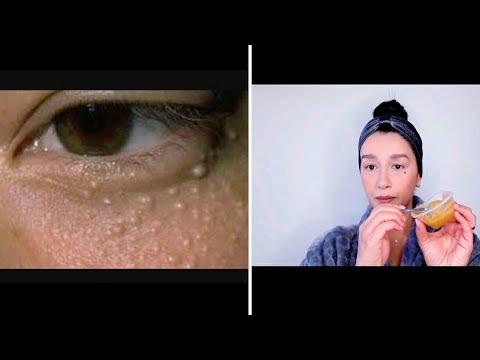 remedios caseros para quistes de grasa en la cara