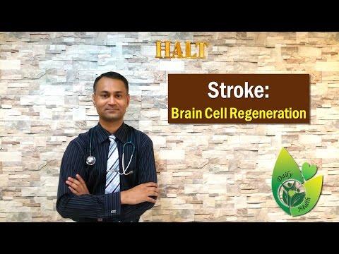 Brain Supplements After Stroke