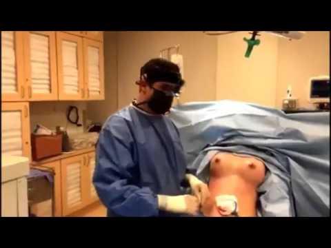 agumentation dr Breast