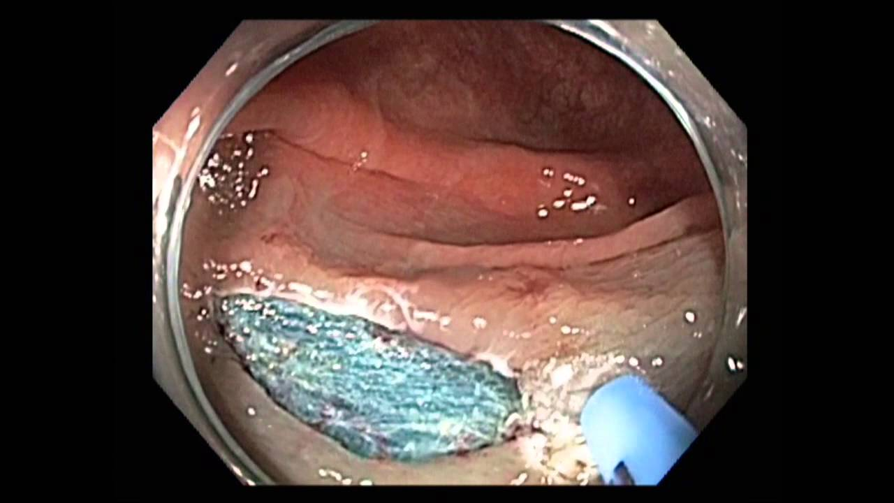 colonoscopy: hepatic flexure flat lesion resection - youtube, Cephalic Vein