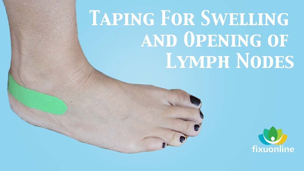 Taping For Swelling And Opening Of Lymph Nodes Youtube