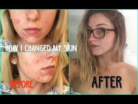 5 Tips on How I Changed my DRY & Acne Prone Skin