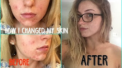 hqdefault - Can Really Dry Skin Cause Acne