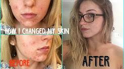 hqdefault - Dry Skin Acne Remedies