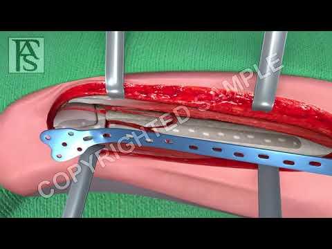 Broken Leg Surgery Femur Fracture Animation
