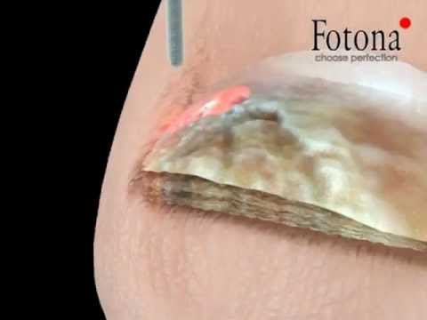 Laser Fungal Nail Treatment | 3D Modelling | Skin & Laser Video