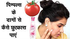hqdefault - Pimples Spots Treatment Naturally In Hindi