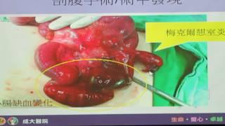 民正新聞記者:蔡永源報導成大醫院外科部主治醫師蘇哲民-梅克爾憩室炎合併小腸阻塞併缺血