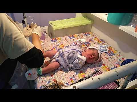 Setelah bayi dilahirkan, ada beberapa tindakan perawatan bayi baru lahir yang dilakukan oleh dokter/bidan. Apa saja tindakan....