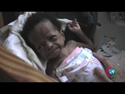 "CAN-DO.ORG Project Haiti - Baby """"Miracle"" rescue"
