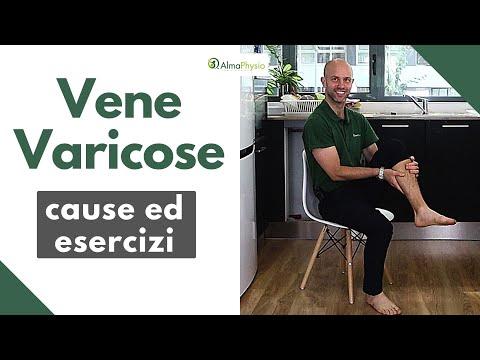 Vene varicose e gambe gonfie: ginnastica completa per risolvere il problema