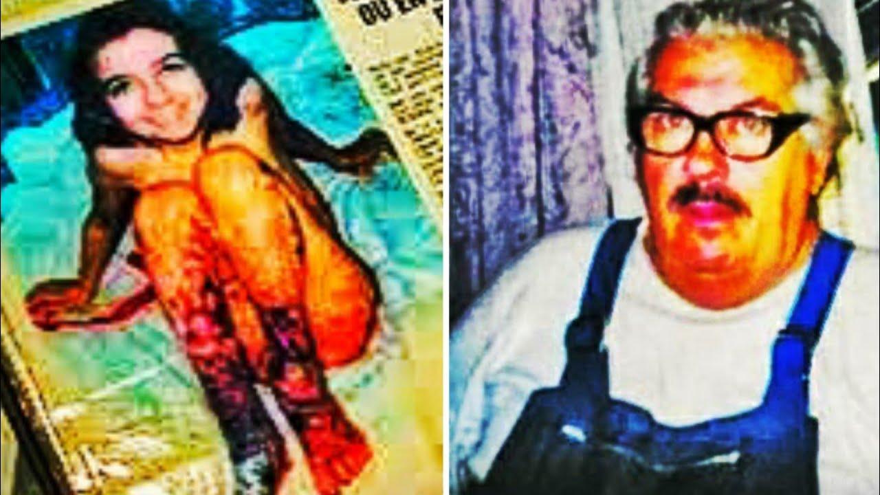 Лидия Гуардо в 9-летнем возрасте после того, как мачеха Люсьен ошпарила ее кипятком