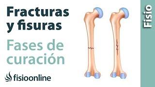 ¿Qué es una fractura y una fisura y cuales son sus fases de curación?