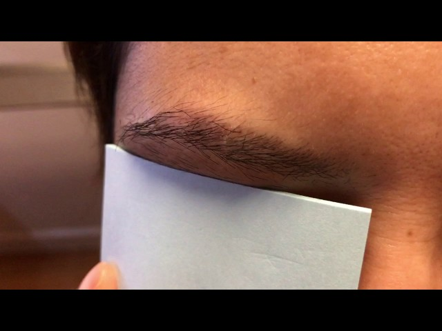 5 Months Early Asian Eyebrow Hair Transplant HD CloseUp