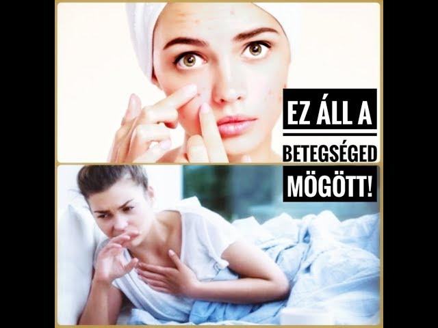Lolaverzum05 - EZT NEM FOGOD ELHINNI! Ezek a leggyakoribb betegségek lelki okai!