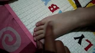 Pijat tradisional bagian punggung kaki