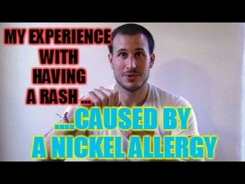 My Experience With Having a Rash Caused By A Nickel Allergy