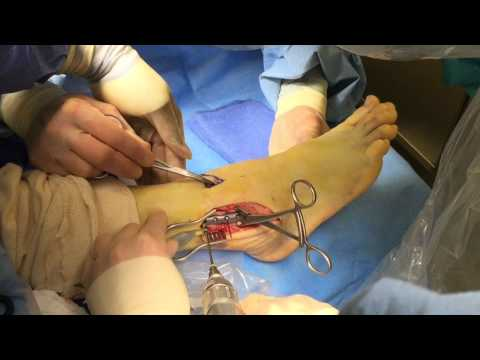 Ankle Fracture Surgery Video - Dr Moore using Stryker 'VariAx Fibula' plating system