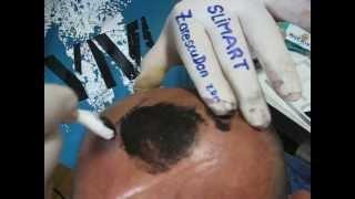 Micropigmentare scalp Oron57 BeautyTech clinica SlimArt artist Zarescu Dan