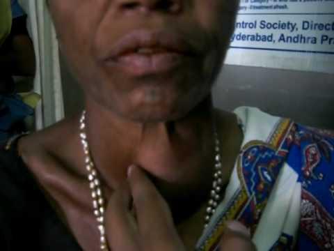 hqdefault - Dysfonctionnements de la thyroïde : le goitre
