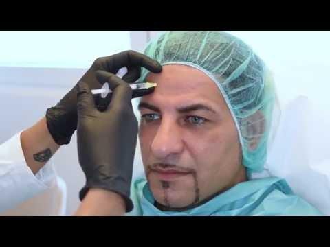 Dr. med. Natalie Keller – Volumenaufbau Stirn und Tränenringe + Botulinumtoxin Stirn und Zornesfalte