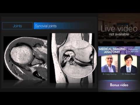 Types of Joints - Medical Imaging Anatomy Course