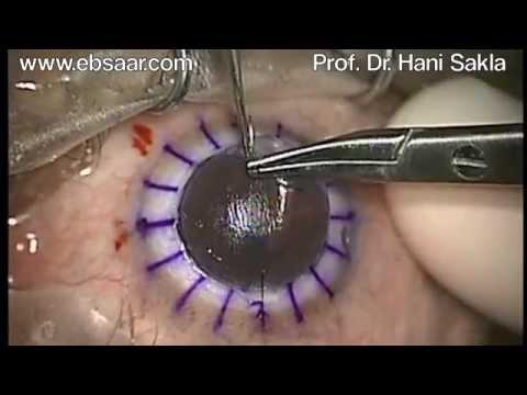 Hani Sakla, Deep Anterior Lamellar Keratoplasty (DALK), Big Bubble Technique  Medium.m4v