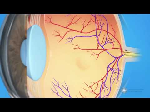 Macular Edema Treatment - American Academy of Ophthalmology