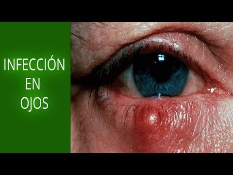 infección por estafilococos en la cuenca del ojo