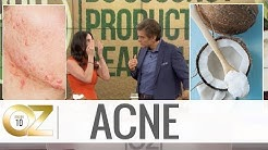 How to Treat Acne With Coconut Oil