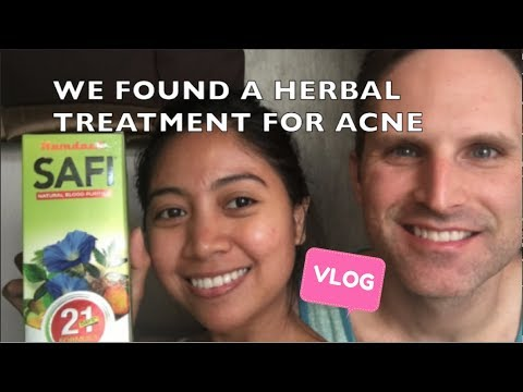 SAFI ACNE TREATMENT | VLOG 32 FILAM LIFE