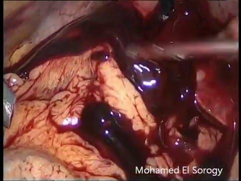 Internal Hemorrhage After Laparoscopic Cholecystectomy