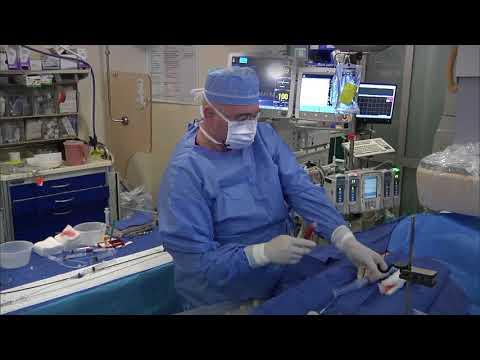 Dr Love PFO Procedure