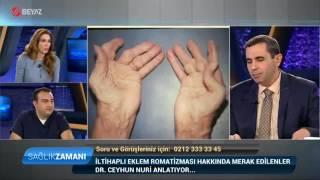 Romatoid Artrit ( İltihaplı Eklem Romatizması) - Dr. Ceyhun Nuri - Beyaz TV Sağlık Zamanı Programı