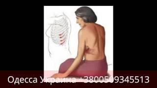 видео Герпес тройничного нерва симптомы