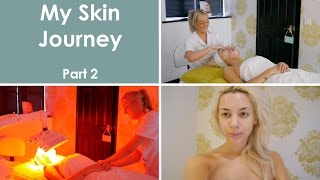 My Skin Journey | Part 2 Face Peel & Omnilux