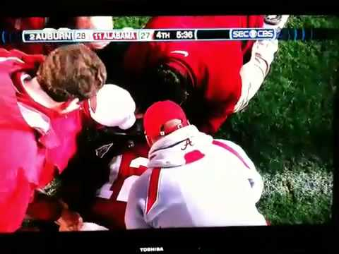 Alabama McElroy Concussion