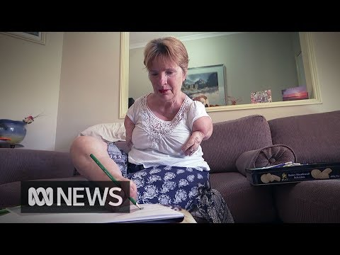 Thalidomide survivor Trish Jackson uses her disability to open minds