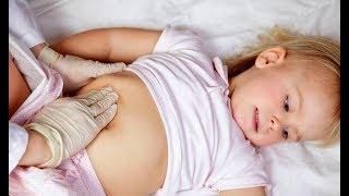 Заболевания кишечника, ВЗК, Болезнь Крона, Язвенный колит, НЯК © inflammatory bowel disease